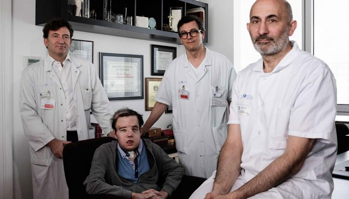 'The man with three faces' receives historic 2nd face transplant