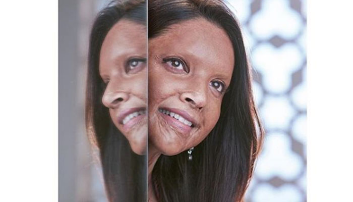 Deepika Padukone shares her first look from 'Chhapaak'