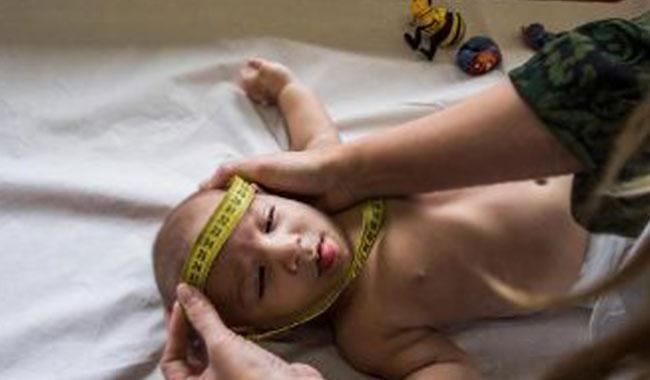 Doctors puzzle over severity of defects in some Brazilian babies
