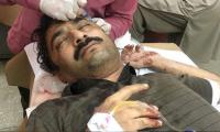 The News senior reporter Noorani severely hurt in attack