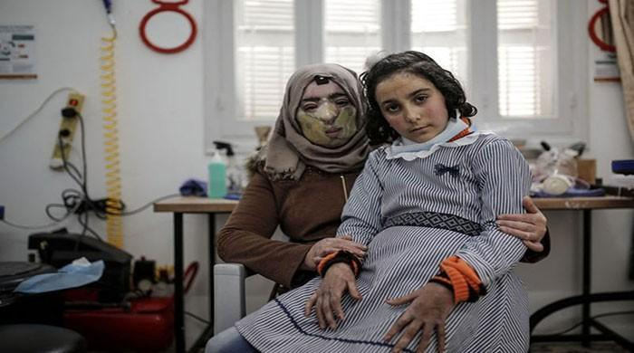 The Gaza girl used a 3D printed mask to fix her burnt face