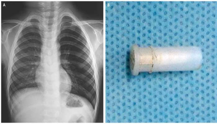 Boy from Shikarpur gets whistle removed from throat at Civil Hospital