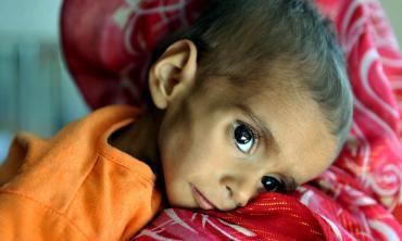 Battling malnutrition