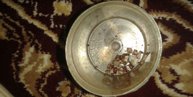Glass pieces from Kauser Ali's face