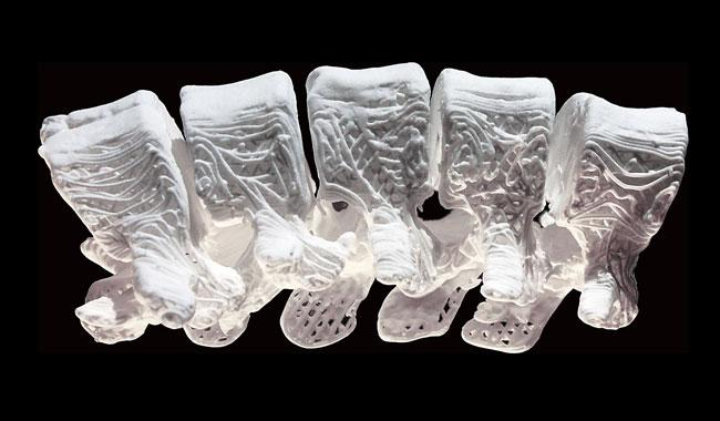 Scientists fix fractures with 3D-printed synthetic bone