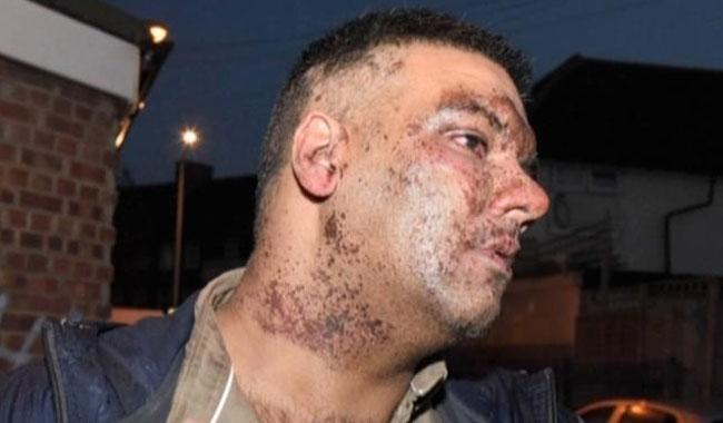 Racial abuse: Pakistani man subjected to acid attack in London