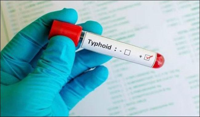'Worst outbreak' of MDR Typhoid in Hyderabad