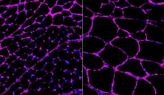 Gene editing advance reverses disease in mice