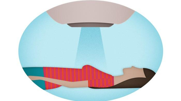 Many women fear and misunderstand breast cancer radiation