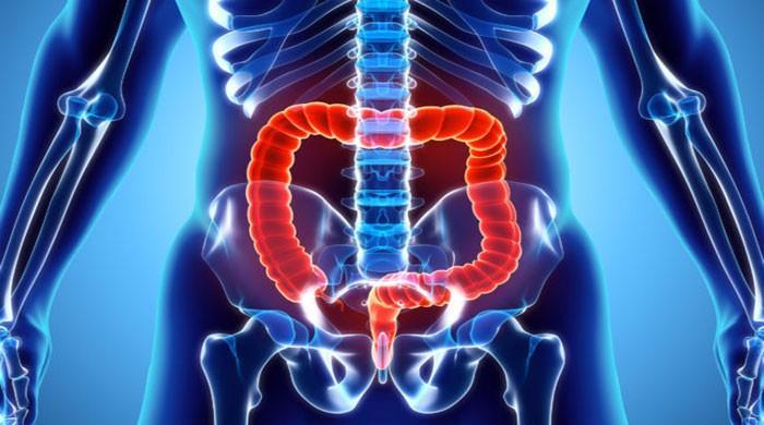 Colon cancer screening should begin at 45: US doctors