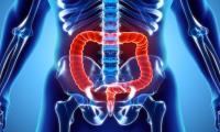 结肠癌筛查应该从45岁开始:美国医生