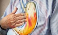 Explainer: Difference between heartburn and acid reflux