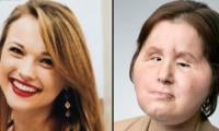 21 year old girl turns youngest to receive face transplant