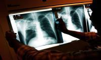 Battles begin to turn in long war on TB