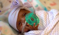 World´s tiniest surviving baby born in California