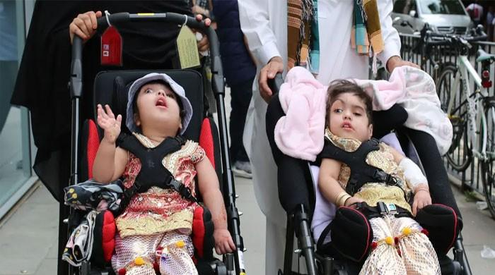 Conjoined Pakistani twins separated after 50 hours of surgery in London