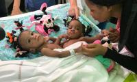 Conjoined twins from Cameroon successfully separated in France