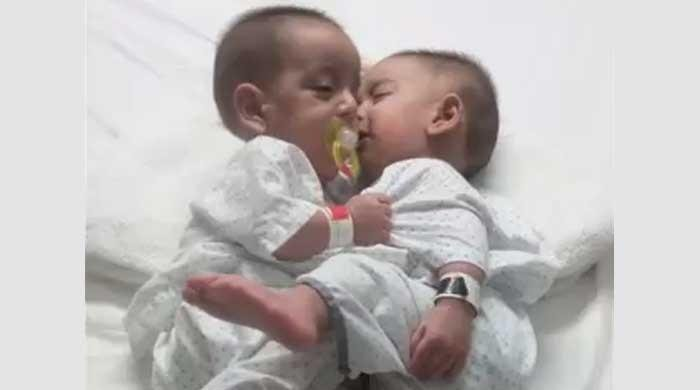 The joint twins got a new lease on life after successful separation surgery in Karachi