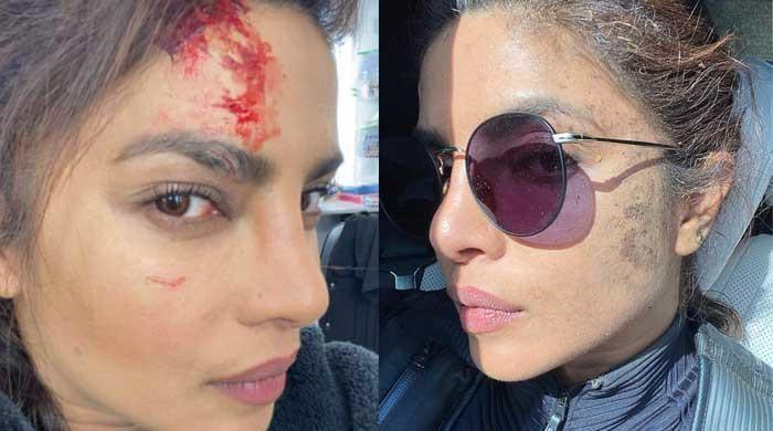 Priyanka Chopra injured on set of 'Citadel'