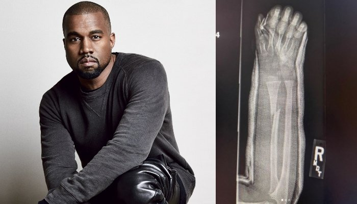 Kanye West shares x-rays snaps of son Saints broken arm