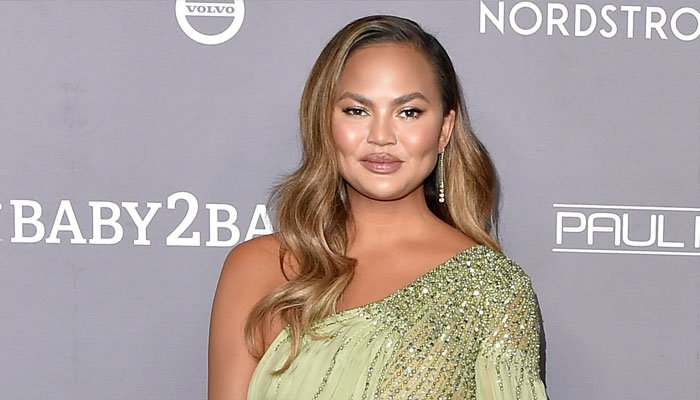 Why Chrissy Teigen posts ugly photos on Instagram